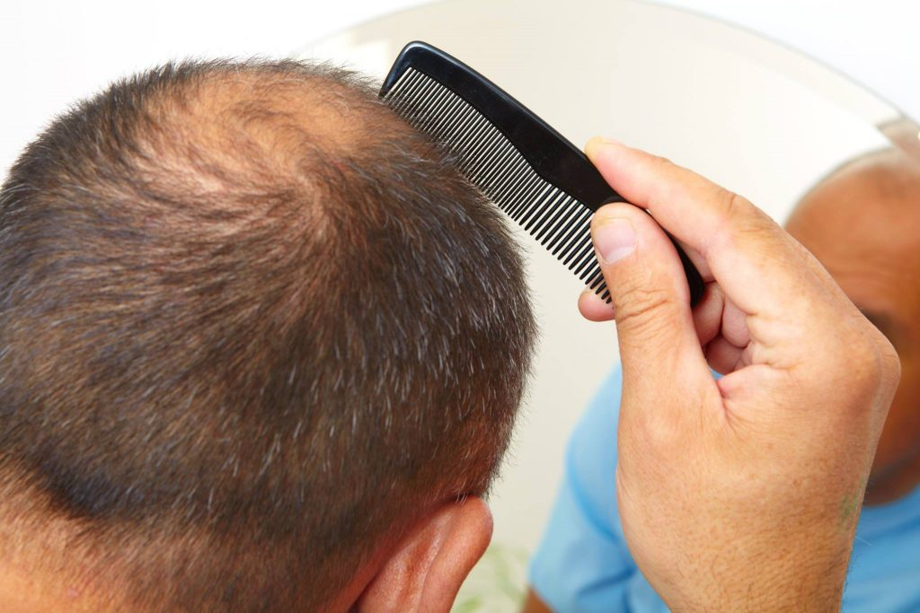hair-replacement-Columbia-SC