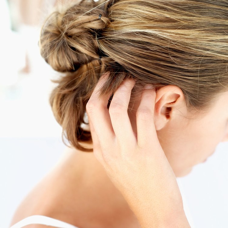 hair loss prevention Columbia. SC